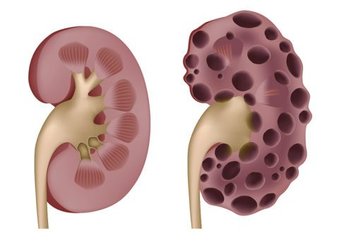 Пониженные эритроциты в крови причины
