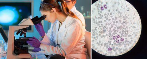 Общий анализ крови у детей анизоцитоз