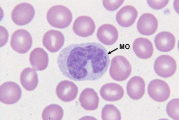 Понижение моноцитов в крови у женщин