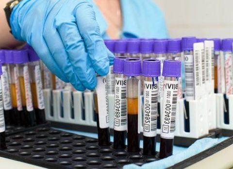 Билирубин связанный в крови норма