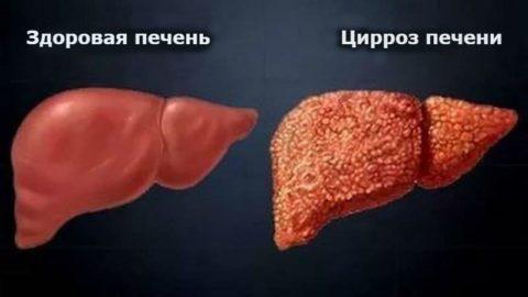 Билирубин в крови онлайн