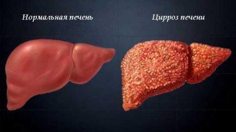 Ачтв анализ крови расшифровка у взрослых