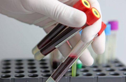 Результаты анализа крови у ребенка 3 лет