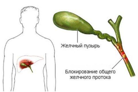 Антитела в крови анализ