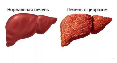 Eosinophilia анализ крови