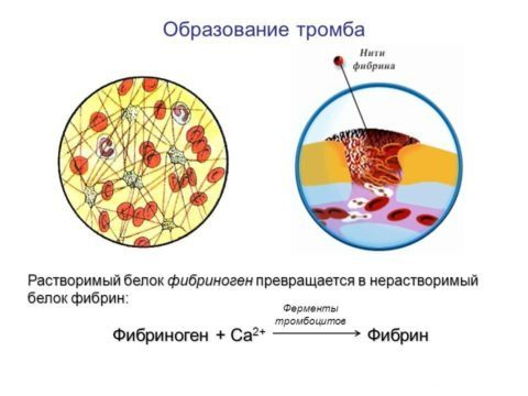 Форум повышен фибриноген