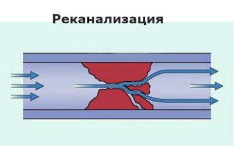 Анализ крови фибринолиз что это