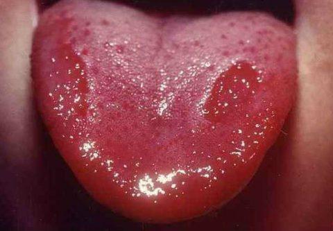 Гепатит в гиперхромная анемия