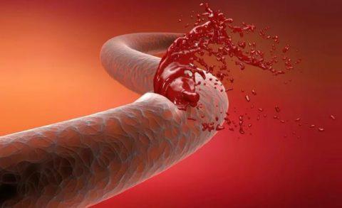 Анемия крови что это