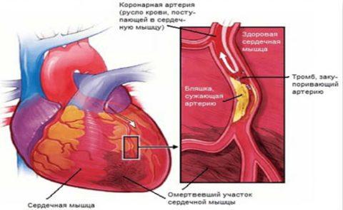 Анализ крови миоглобин норма