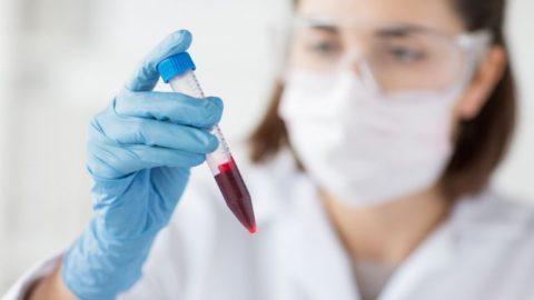 Цены анализ крови на пса у мужчин