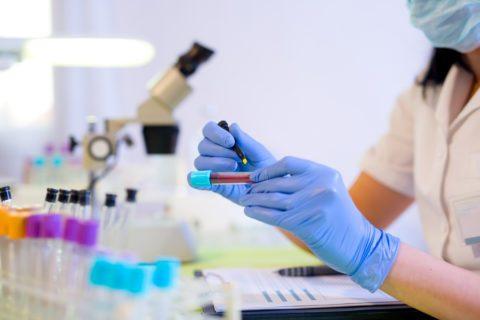 Острый гепатит с ифа