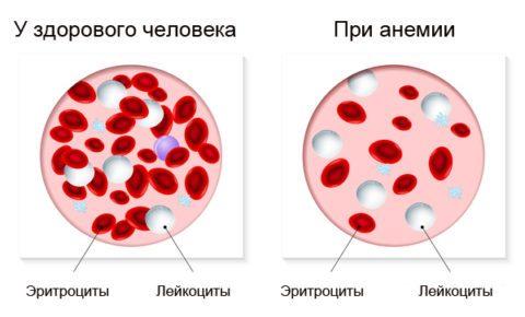 Щелочная фосфатаза в крови повышена или понижена: роль в диагностике