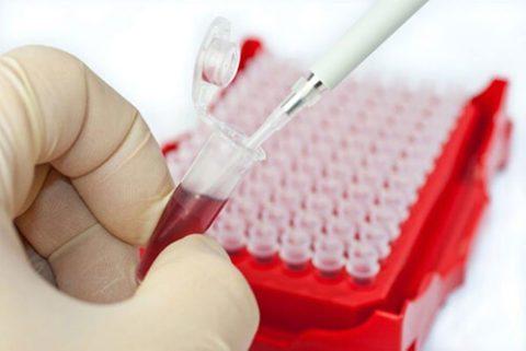 Lymphocytes в анализе крови что это