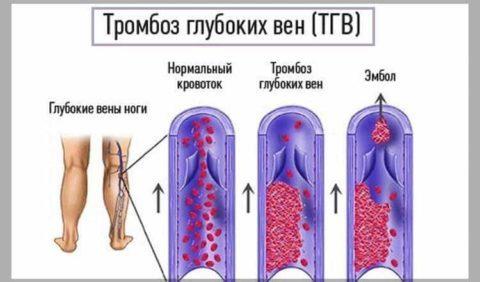 Нижняя граница тромбоцитов в крови